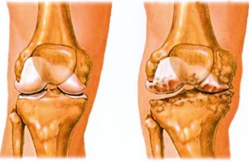 kalcium artrózis kezelés)